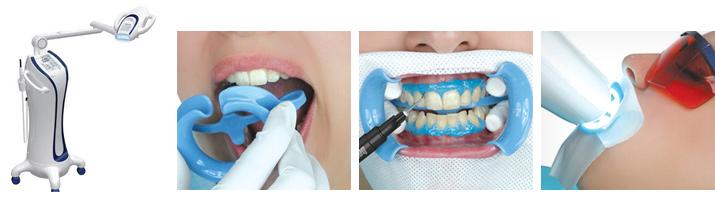 Отбеливание зубов этапы